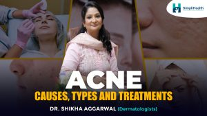 What Causes Acne? & How can you cure acne?