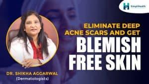 Can deep acne scars go away?