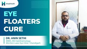 Eye Floaters: Symptoms, Causes & Treatment